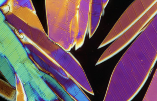 adenosine crystals polarized light