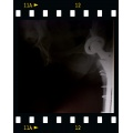 the x ray isnt very good,but that s more or less what I have inside my right leg.... 