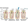 cost for root canal treatment