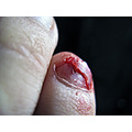 toe cut blood _violence