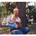 Broken collarbone from softball collision May 1999