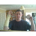 emotionsfriday emotionfriday brokenarm cast